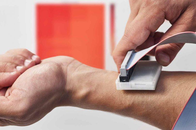 diagnostika rakoviny kůže sKan